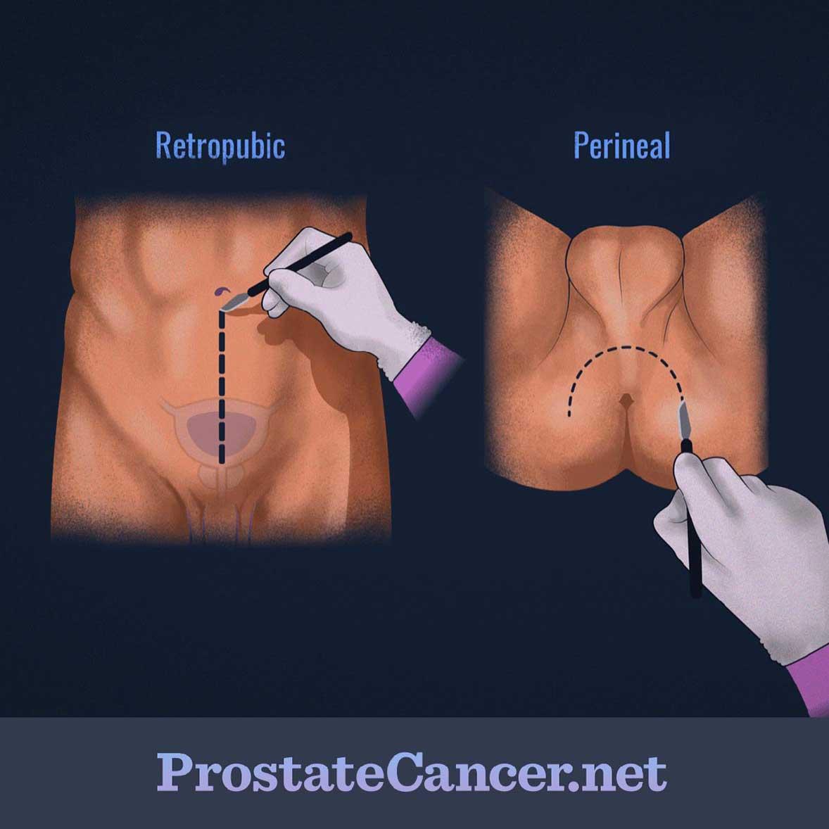 What Is Radical Prostatectomy Prostatecancer Net