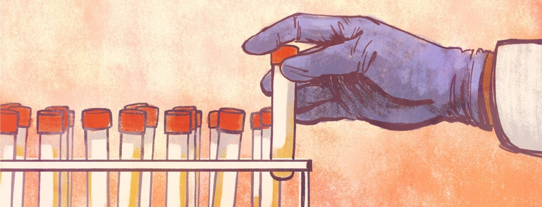 A scientist's gloved hand picks up a urine sample from a tray for biomarker testing.